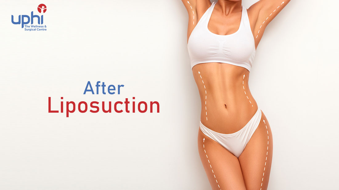 After Liposuction: FAQs