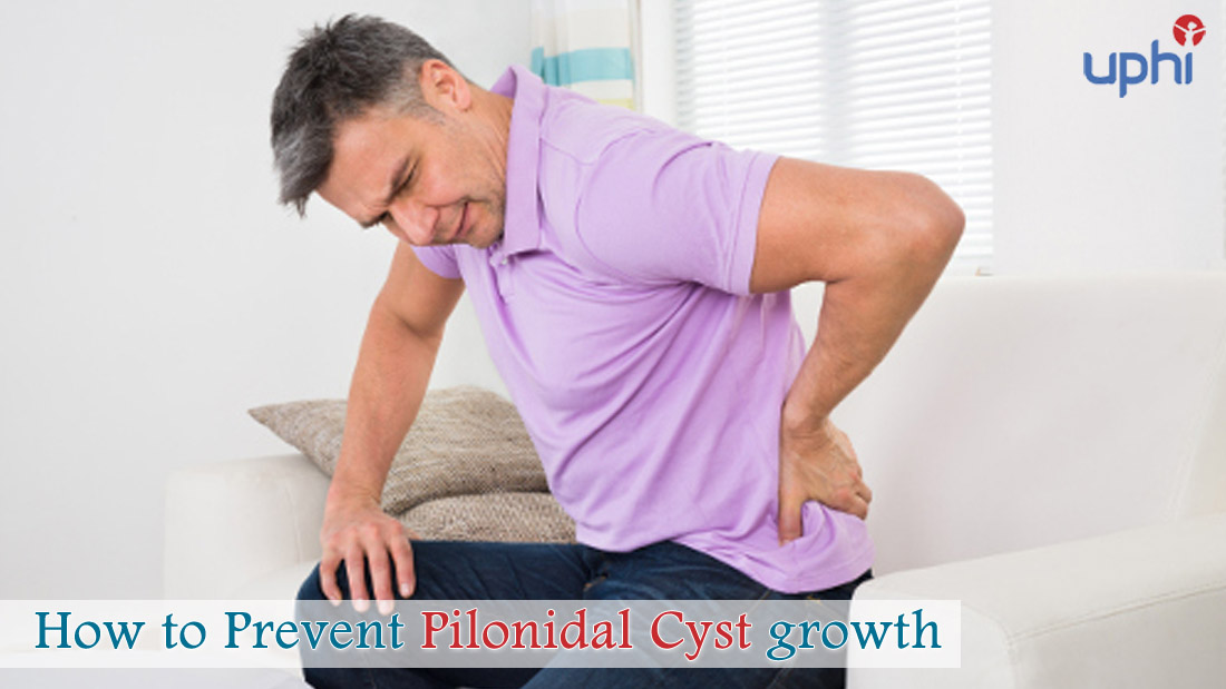 Prevent Pilonidal Cyst Growth