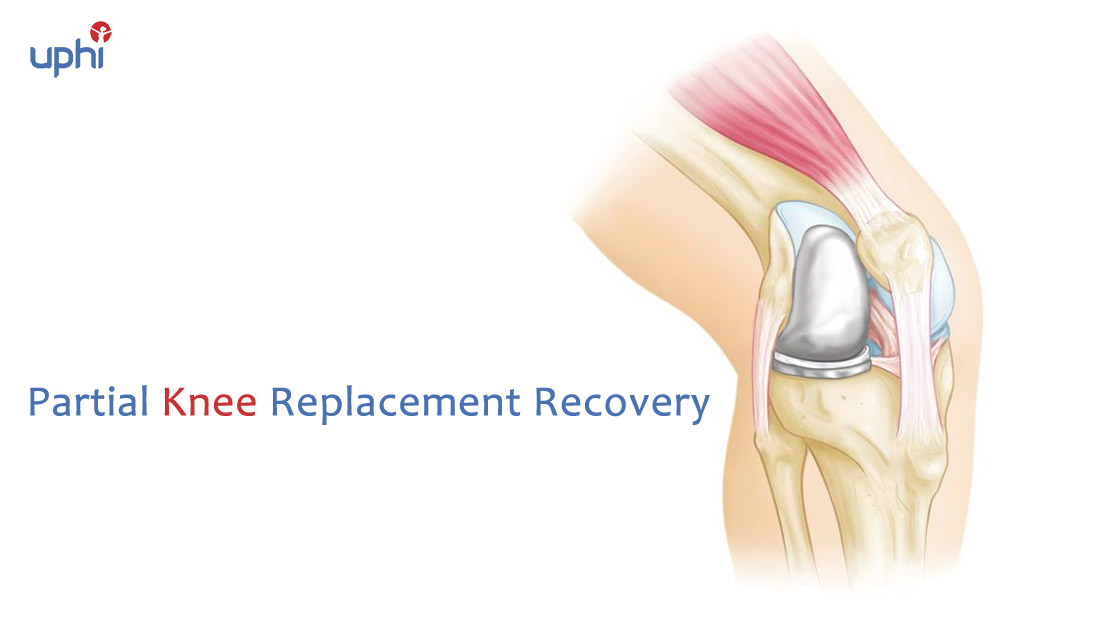 Partial Knee Replacement Recovery