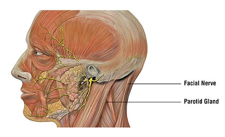 Signs & Symptoms of parotid gland cancer gurgaon